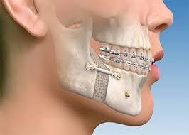متخصص جراحی فک،دهان،صورت از (جراحی فک و زاویه دار کردن صورت) میگوید!