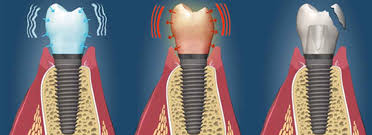 متخصص ایمپلنت : (متخصص پروتزهای دندانی) یا (پریودنتیست) کیست؟