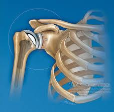 آرتروپلاستی و تعویض مفصل چیست؟