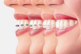 ارتودنسی (Orthodontic) و متخصص ارتودنسی را بهتر بشناسیم!