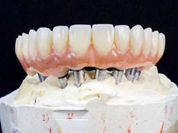 متخصص دندانپزشکی ترمیمی 2