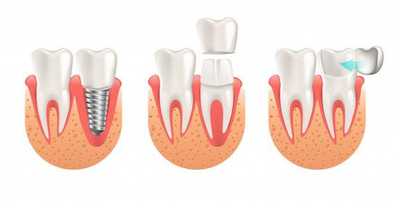 متخصص پروتزهای دندانی 4
