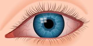 بیماری های مهم چشم