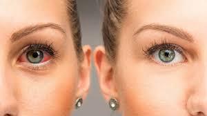سطح چشم 2