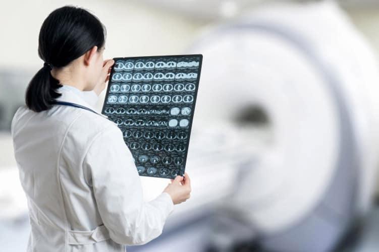 متخصص مغز و اعصاب 1