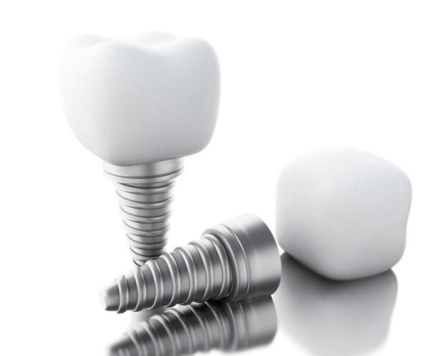 متخصص پروتز دندان