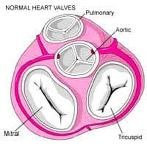 جراحی قلب باز 6