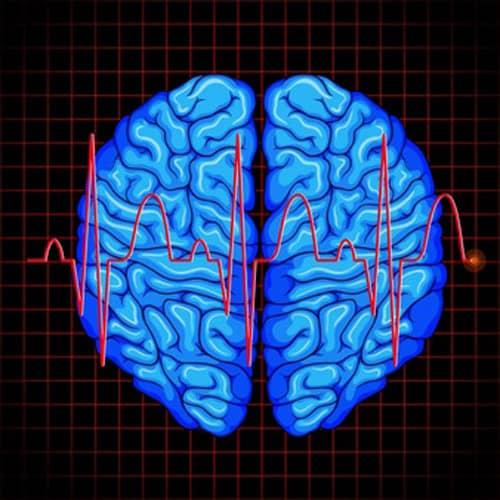سکته مغزی 1