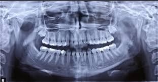 متخصص رادیولوژی فک ،دهان ،صورت 1