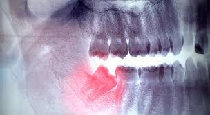 متخصص رادیولوژی فک، دهان ،صورت 2