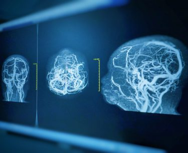 فوق تخصص استریوتاکسی:(5 نفر از بهترین متخصصین جراح مغز و اعصاب تهران)