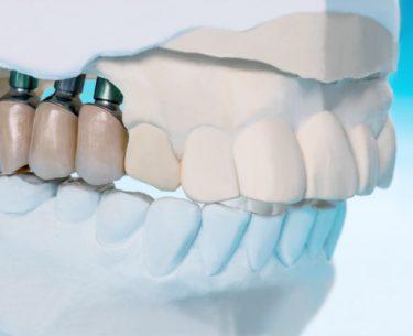 متخصص پروتزهای دندانی(پریودنتیست) : 7 نفر از برترین متخصصین ایمپلنت
